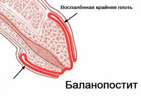 Белый налет на половом органе