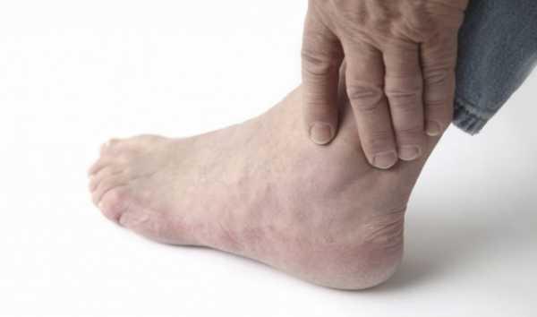 Подагрический артрит лекарства